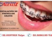 Ortodoncia no pagas pie solo cuotas mensuales
