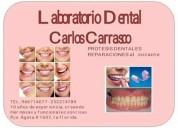 Implantes Dentales en Puente Alto