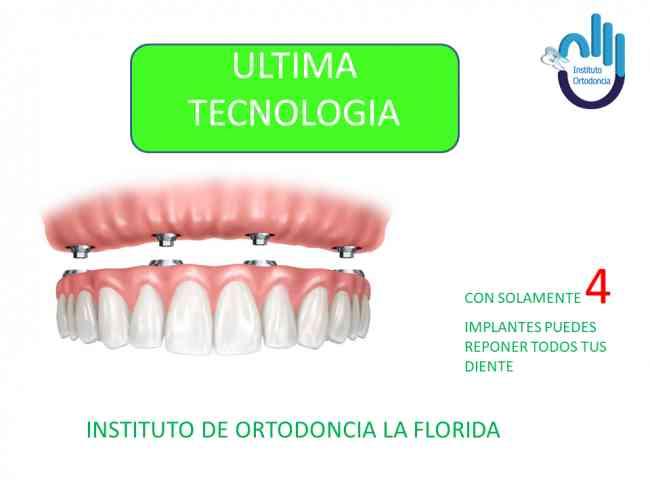 Instituto de ORTODONCIA en la Florida, Implantes dentales en la Forida