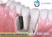 implantes dentales en La Florida