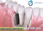Implantes dentales en ciudad del sol
