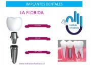 Implantes dentales en peñalolen