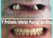 Prótesis dental a domicilio