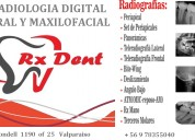 Radiologia dental rxdent digital