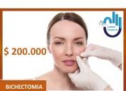 Bichectomia $ 200.000
